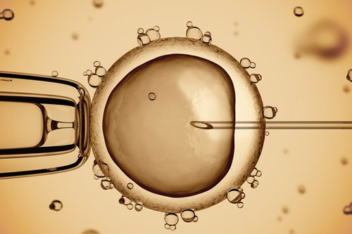 Assisted Reproductive Technology - Egg Donation